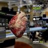 INSIGHT HEART Thumbnail